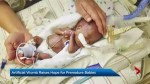 Artificial womb research may help premature babies