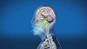 The science behind a brain freeze
