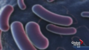 24 E. coli cases in Edmonton