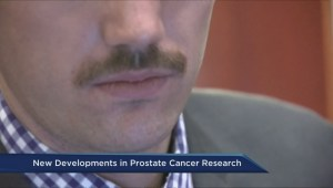 Prostate cancer research breakthrough