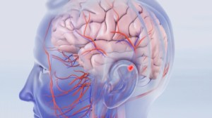 B.C. company to start trials on stroke-prevention procedure