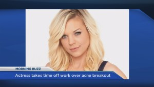 Actress takes time off work over acne breakout