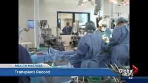 Edmonton surgical teams set transplant record