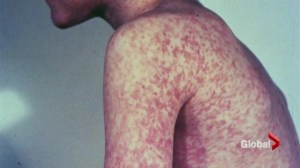 Measles concerns grow