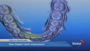 Digital tooth impressions
