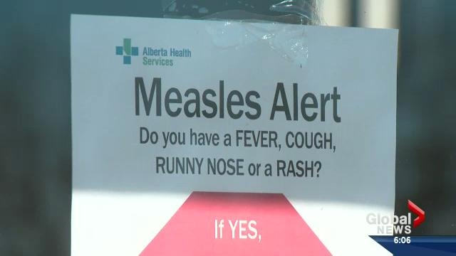 how to get immunization records alberta