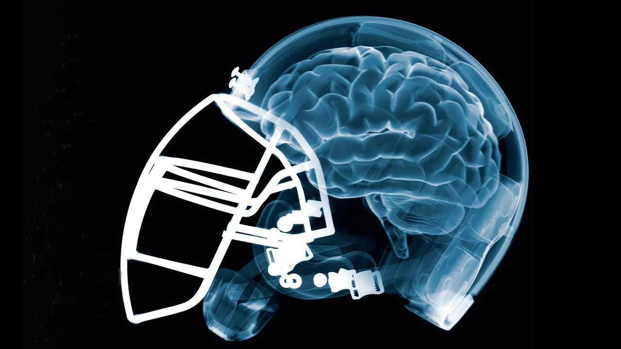 Brains Games Bennet Omalu Concussions And The Nfl How One Doctor Changed