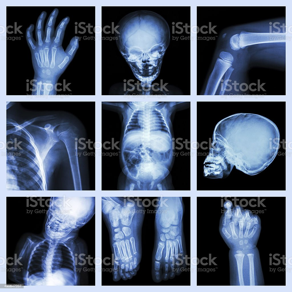 Baby Newborn Xray Collection Xray Part Of Child Body Stock Photo More