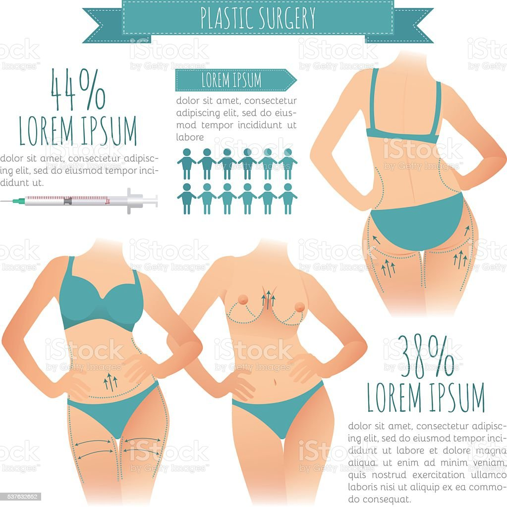 Chirurgie Liposuccion Chirurgie Infographie Vecteurs De Liposuccion Vecteurs Libres De