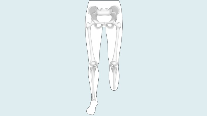 Information for Lower Limb Amputees and their Families Ottobock US
