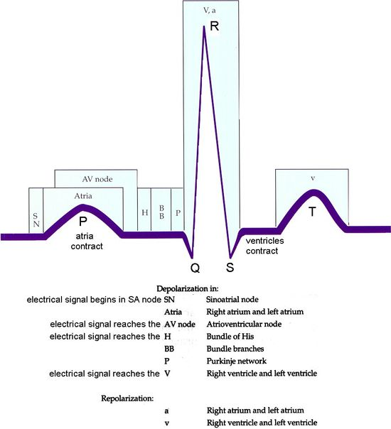 404 best Nursing EKGs \ arrhythmias images on Pinterest Health - medical surgical nursing resume