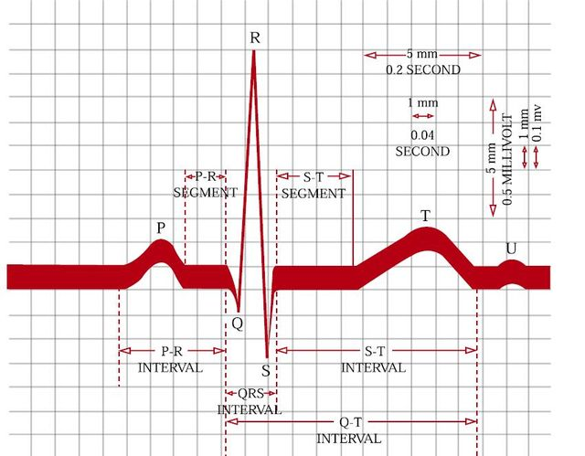 486 best ECG-EKG-Electrocardiograma-Electrocardiography - resume review