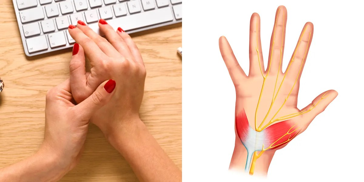 2 Carpal Tunnel Syndrome Symptoms You Shouldnt Ignore Self
