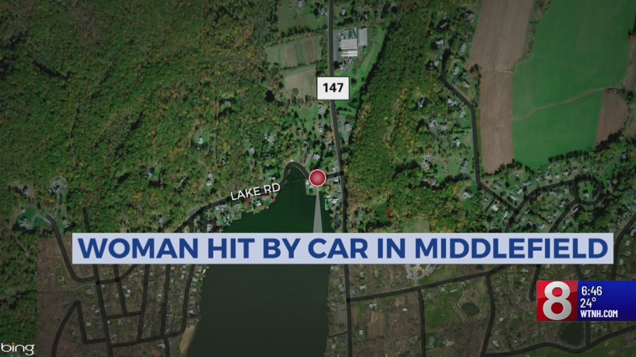 70 247 Pedestrian Struck By Car In Middlefield Suffers Serious Injuries