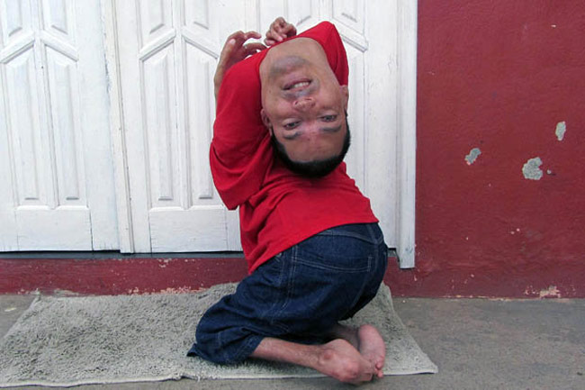 Money Falling Live Wallpaper Brazilian Man Born With His Head Upside Down Becomes