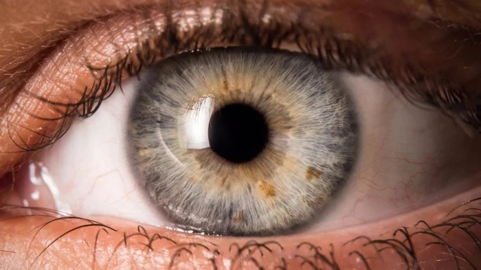 Eye Exam Centers 5 Eye Symptoms You Should Never Ignore - Today.com