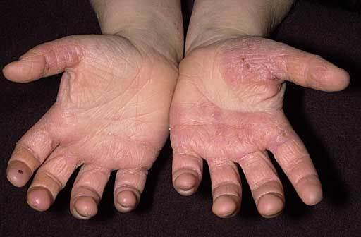 Sore Hands No More Hppr