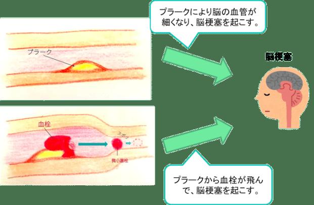 arteriosclerosis1