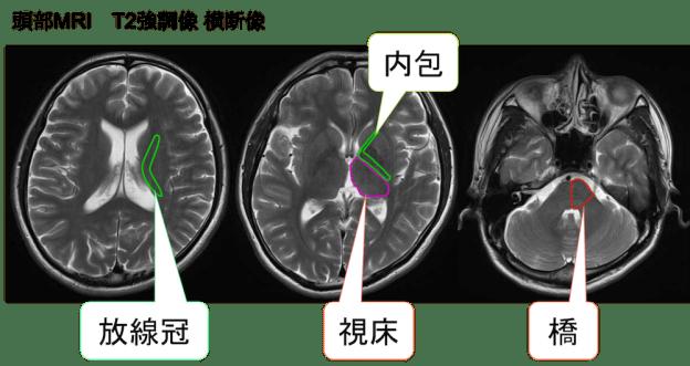 lacunae syndrome