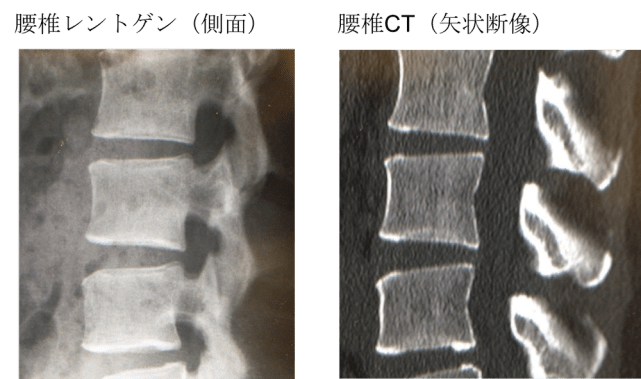 osteoporosis Xray and CT findings