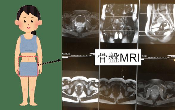 uterus and ovary mri findings