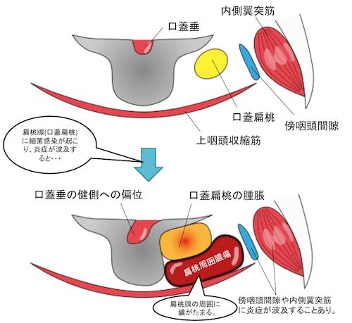 Tonsillar abscess