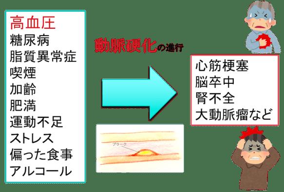 cause of Arteriosclerosis