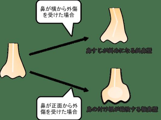 nasal fracture figure1