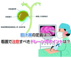 Leakage bile Eye-catching image
