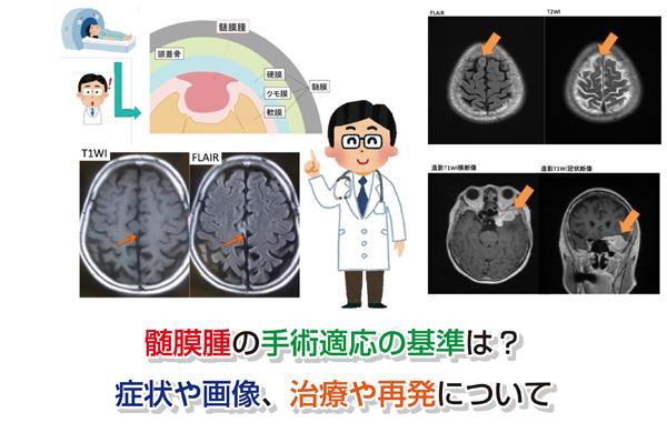 Surgical indications of meningioma Eye-catching image