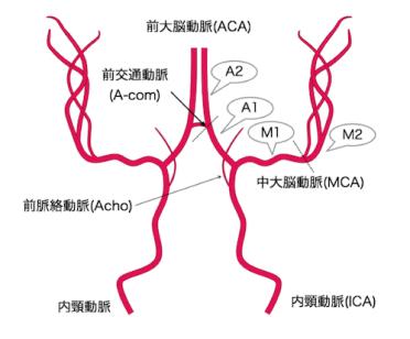 anatomy-of-mra-brain-mri