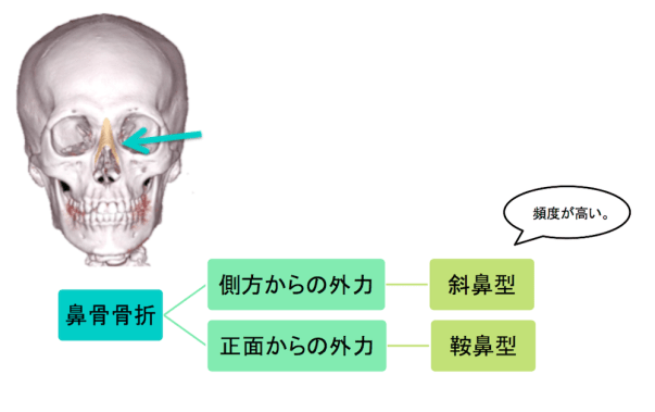 nasal-bone-fracture-classification