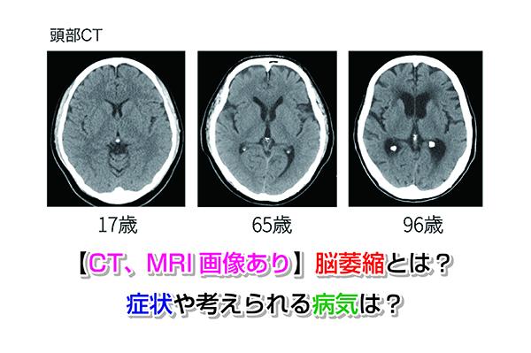 【CT、MRI画像あり】脳萎縮とは?症状や考えられる病気は?