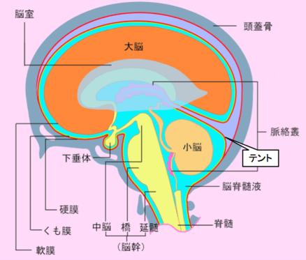 doc1-brain