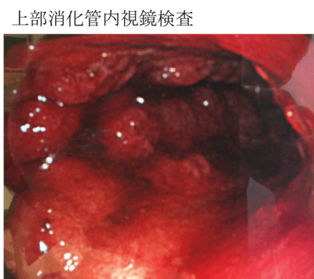 Scirrhous gastric cancer endscope findings