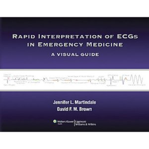 Rapid Interpretation of ECGs in Emergency Medicine