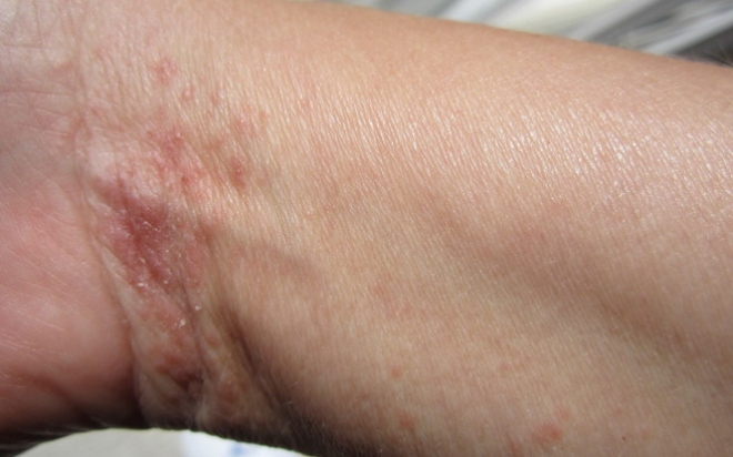 scabies-on-wrist.medium.jpg