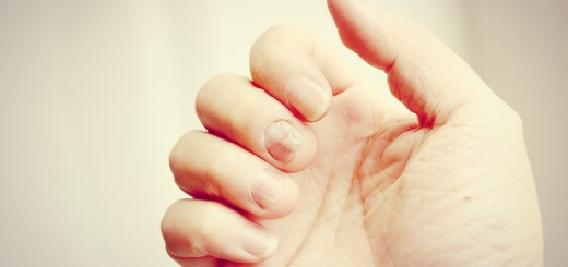 Fungus Infection On Nails Hand, Finger With Onychomycosis. - Sof