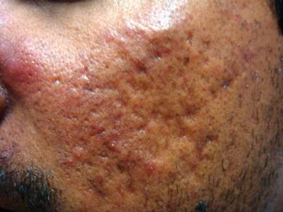Laser Acne Resurfacing A Painless Method For Acne Scar Treatment