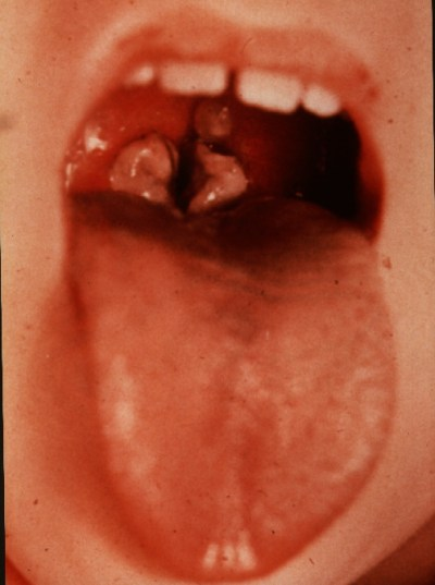 Medical Pictures Info – Diphtheria