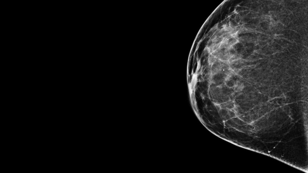mammogram-1024x576