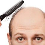 Specific Type Of Male Baldness Linked To Prostate Cancer Risk