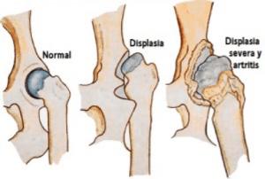 displasia de cadera 3