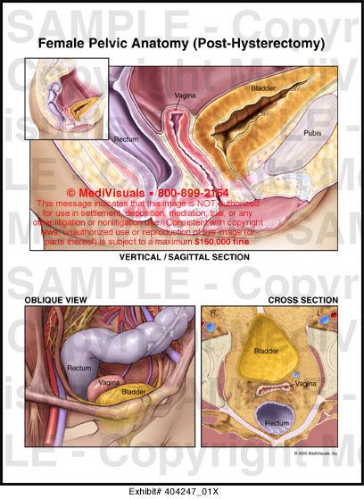 Female Pelvic Anatomy (Post-Hysterectomy) Medical Exhibit