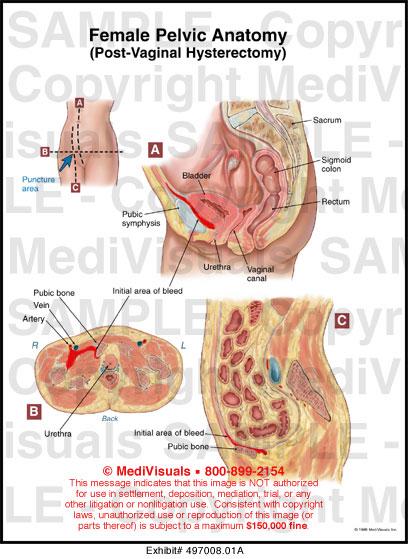 Female Pelvic Anatomy (Post-Vaginal Hysterectomy) Medical Exhibit