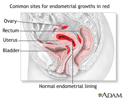 Endometriosis Medlineplus Medical Encyclopedia