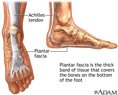 Plantar fasciitis MedlinePlus Medical Encyclopedia