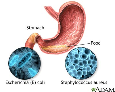 Food poisoning MedlinePlus Medical Encyclopedia