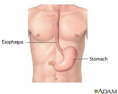 Esophagus and stomach anatomy MedlinePlus Medical Encyclopedia Image