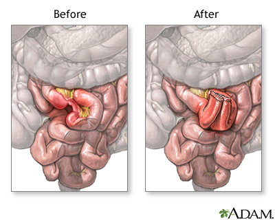 Before and after small intestine anastomosis MedlinePlus Medical